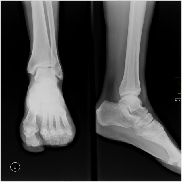 ankle-siegler-Medical_X-Ray_imaging_JMW05_nevit
