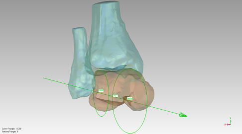 Rendering of Siegler's truncated, saddle-shaped skewed cone model with apex on lateral side.