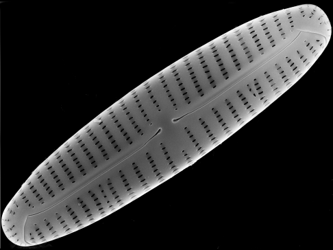 Encyonema appalachianum, a new species of diatom from western Pennsylvania discovered by Marina Potapova in 2014