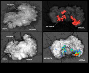 tumor-quantum dots