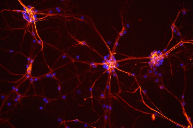 mouse-neurons